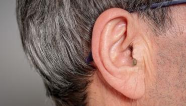 Cosa sono gli apparecchi acustici quasi invisibili?